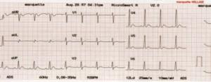 Image for Marquette® Ecg Recording Paper