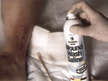 Image for Wound Wash Saline